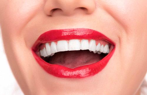Идеальная улыбка без стоматолога за 2 минуты — возможно!