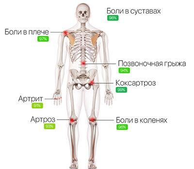 Биокрем Artrovex для суставов купить
